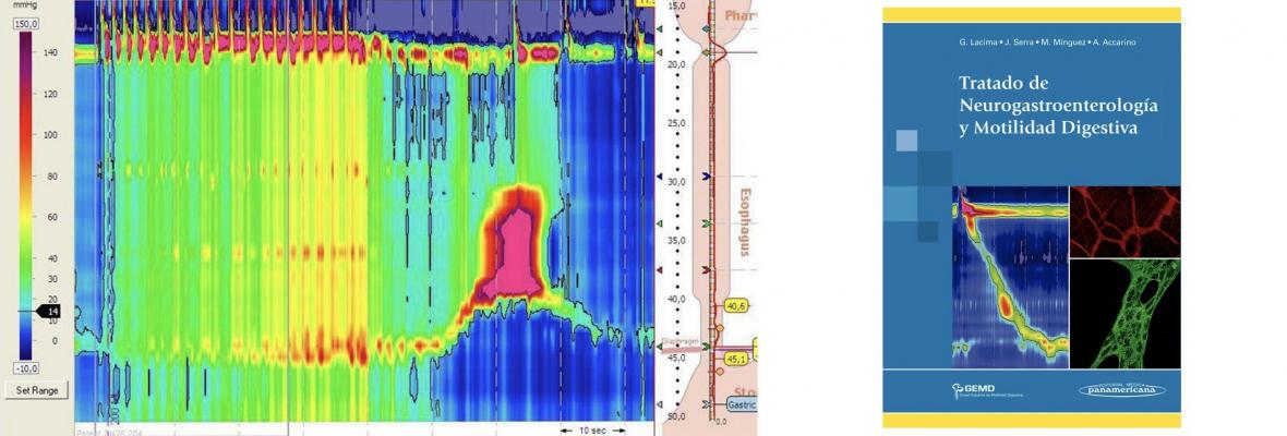Nuevo Tratado Neurogastroenterología
