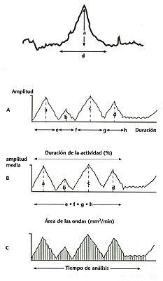 1) Medida de la amplitud (0) y Duración (d) de las ondas presivas 2) Proce