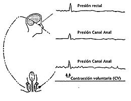 El paciente aumenta simultáneamente la presión en el recto y canal anal