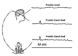 El paciente únicamente aumenta la presión en el canal anal