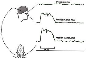 Conseguir que el cierre del canal anal sea rápido, se mantenga la presión elevada durante unos segundos (15-30), y de forma lenta y progresiva vaya disminuyendo la fuerza hasta alcanzar la línea basal