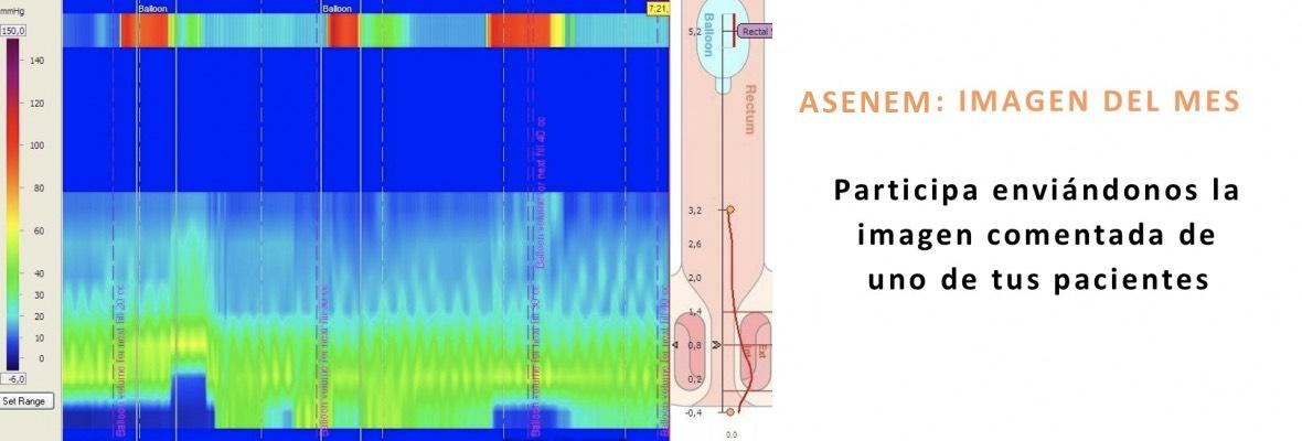 asenem-10-1180x400_c